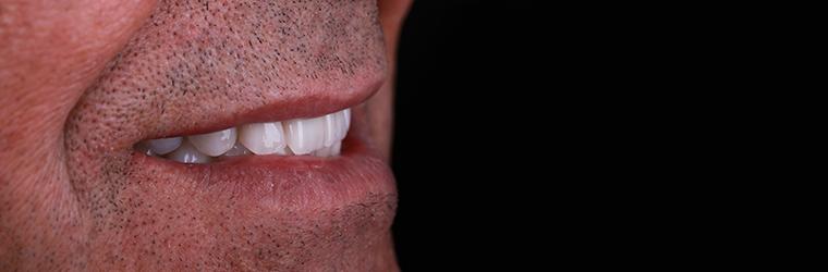 Dental Care Clinic - Dentição Imediata